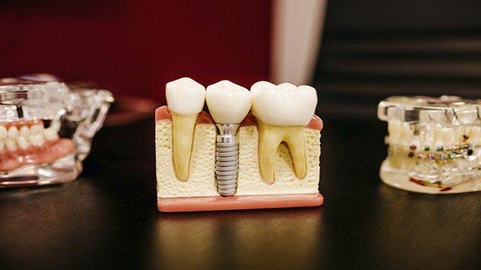 ¿Qué sucede si no ponemos un implante dental?