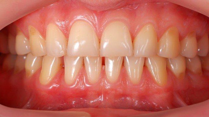 El aviso de Harvard sobre una posible conexión entre los dientes y el cáncer de estómago
