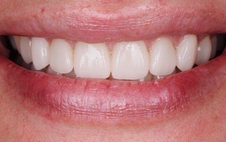 Caso exito antes carillas dentales