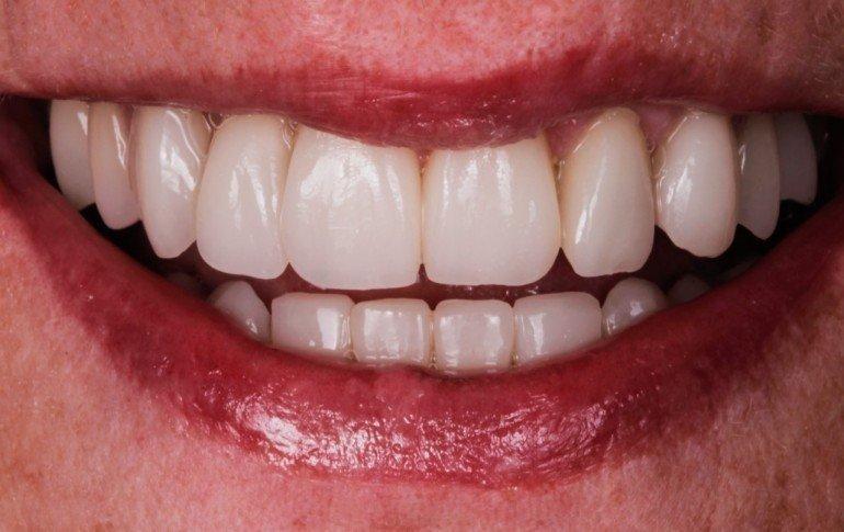 Caso exito antes blanqueamiento dental