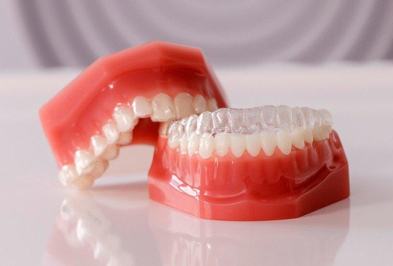 Ortodoncia invisible estetica