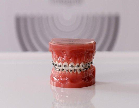 Tratamientos ortodoncia infantil